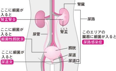尿路感染症 | まるはし女性応援クリニック