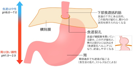 ヘルニア 食道 筋 トレ 裂孔 食事と生活習慣に気をつけて逆流性食道炎を予防|おとなの安心倶楽部|セコム