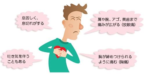 心筋 梗塞 前兆 体験