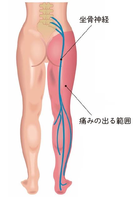 坐骨神経痛の再発を防ぐ「姿勢」の鉄則:つらい「坐骨神経痛」を自力で ...