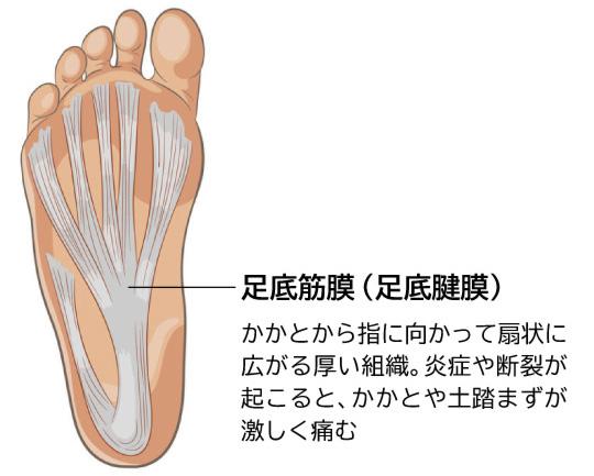 足 の 裏 歩く と 痛い