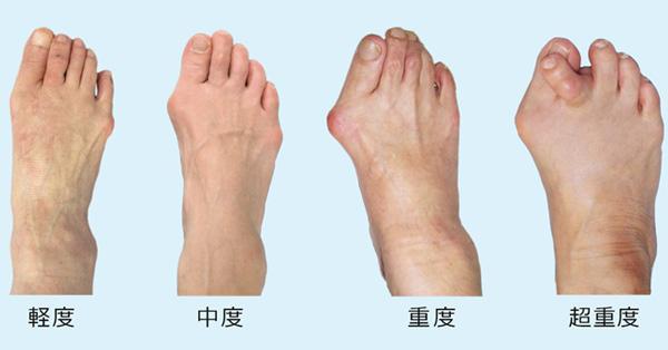 「外反母趾」の画像検索結果