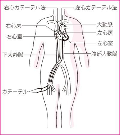 検査 心臓 カテーテル 心臓カテーテル検査