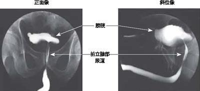 膀胱尿道造影検査:病院で受ける検査事典:日経Gooday(グッデイ)