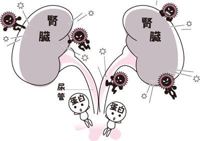 性 蛋白 尿 起立 蛋白尿(たんぱく尿)の原因として考えられること
